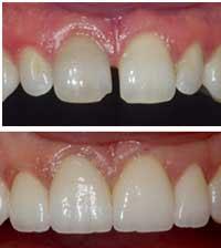 Dental Bonding India | Teeth Bonding Cost Aurangabad