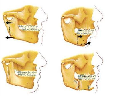 Orthognathic Jaw Surgery India | Oral Surgeons Aurangabad