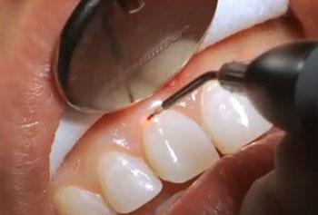 Laser Gum Surgery Aurangabad Gingivectomy India Gum