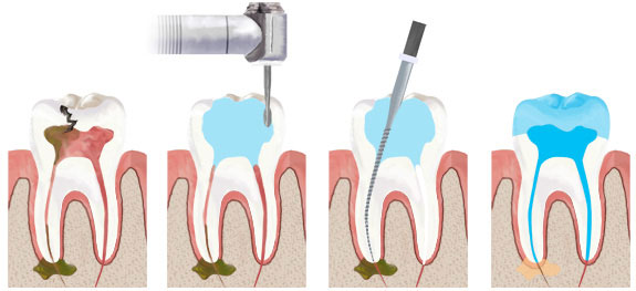 Root Canal Therapy Cost India | Endodontic Treatment Aurangabad
